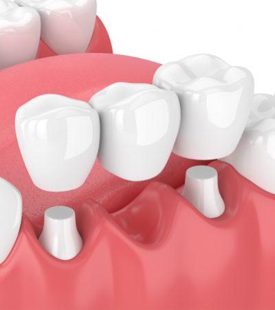 Bridges - The Courtyard Dental Care