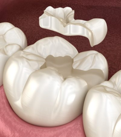 Inlays and Onlays - The Courtyard Dental Care