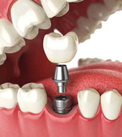 Straumann® Dental Implants - The Courtyard Dental Care